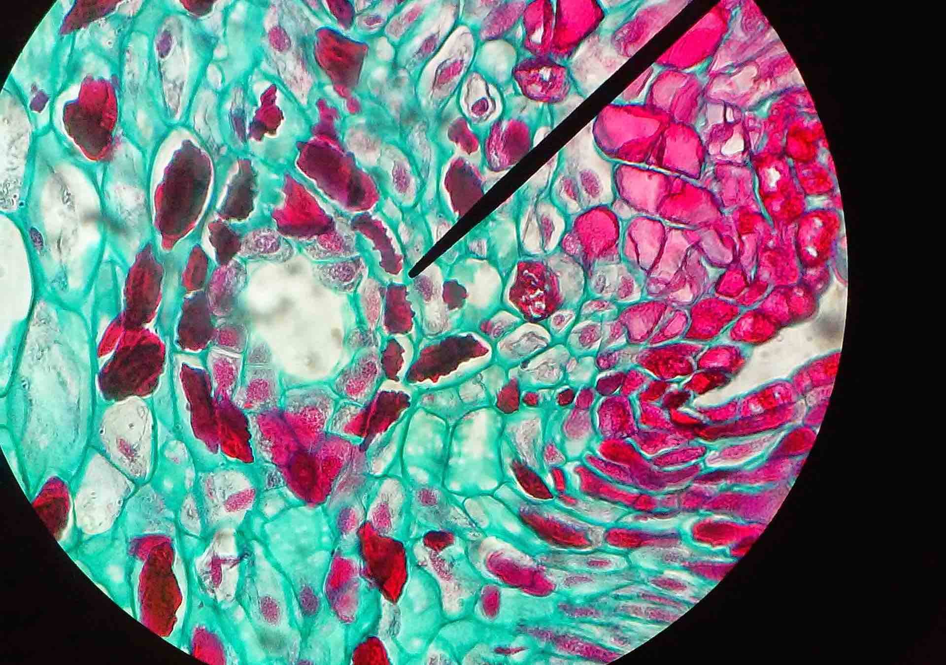 Data Under the Microscope: Bio-IT World 2017